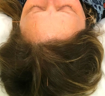 Photo of acupuncture for migraine